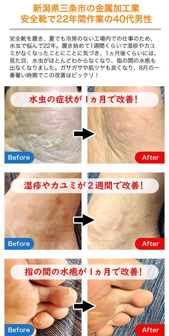 銅繊維靴下を履いて1ヵ月で湿疹、カユミ、水虫、かかとのひび割れが改善された
